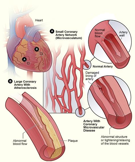 Human Biology Online Lab Coronary Microvascular Disease